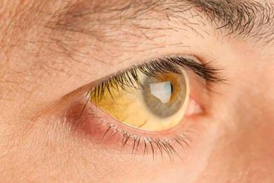 Hepatitis, yellow eyes
