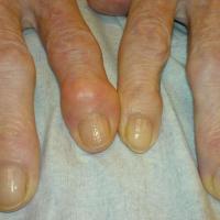 36c9bd53ff 50154805 arthrose deformation doigts