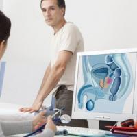 58382 prostata examen