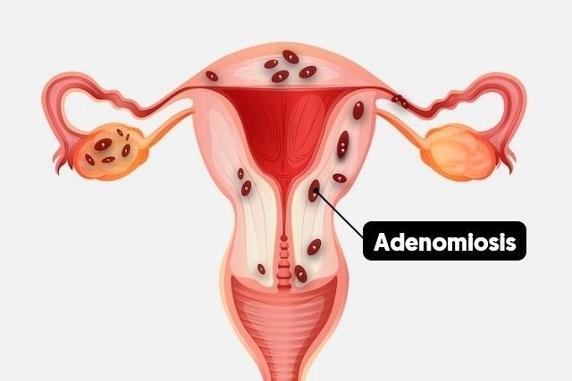 Adenomiosis 46420 l 1