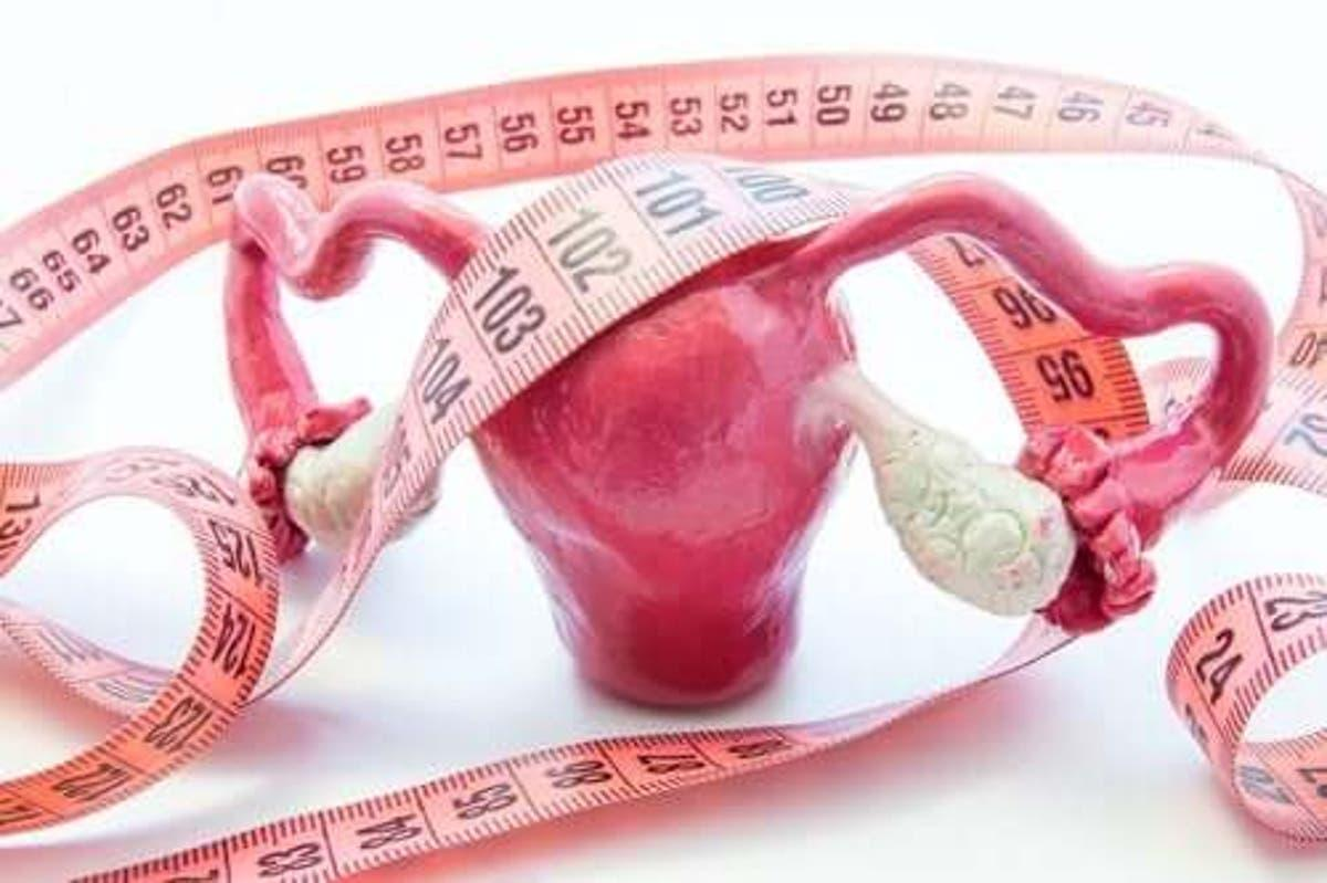Adenomyose maladie uterine