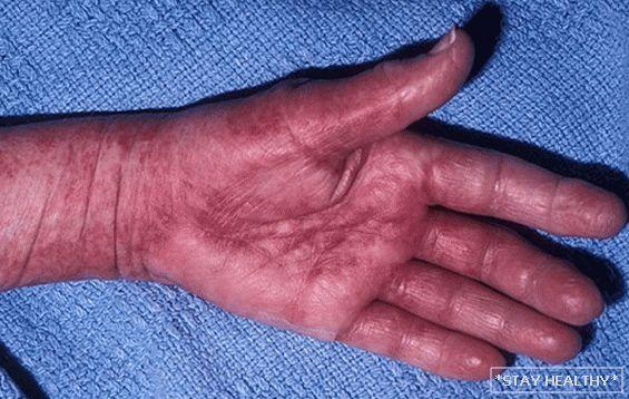 Amiloidoz chto eto takoe prichini simptomi i lechenie pervie priznaki amiloidoza kakie organi on mozhet po