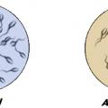 Azoospermia 1