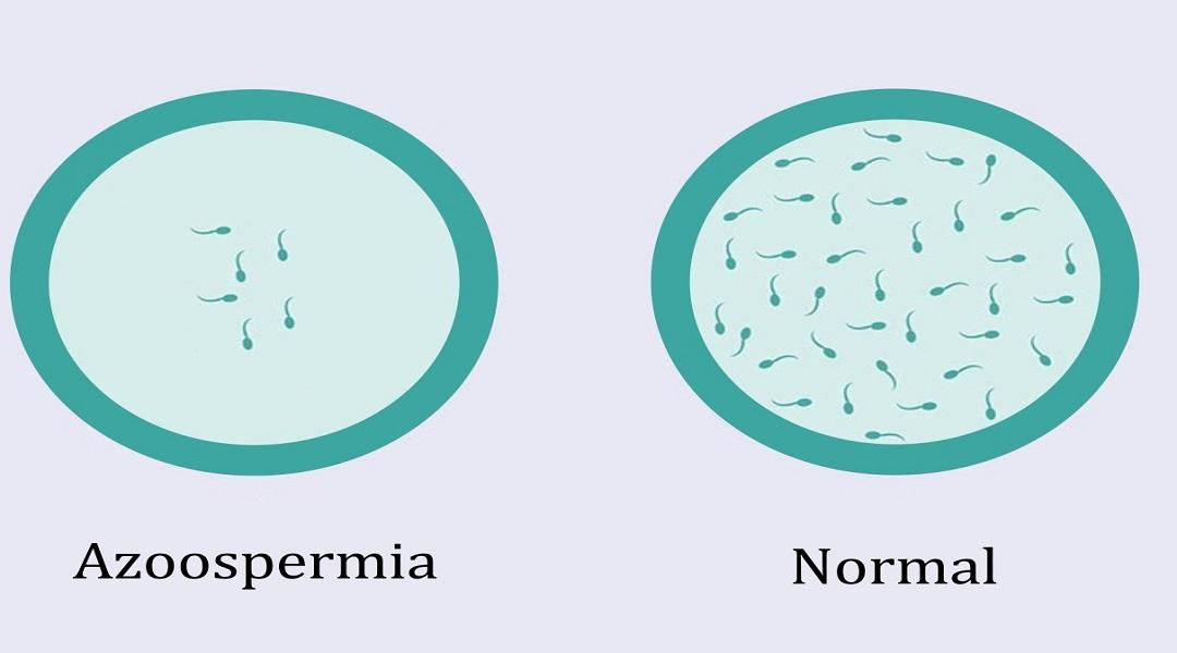 Azoospermia and normal 1 1