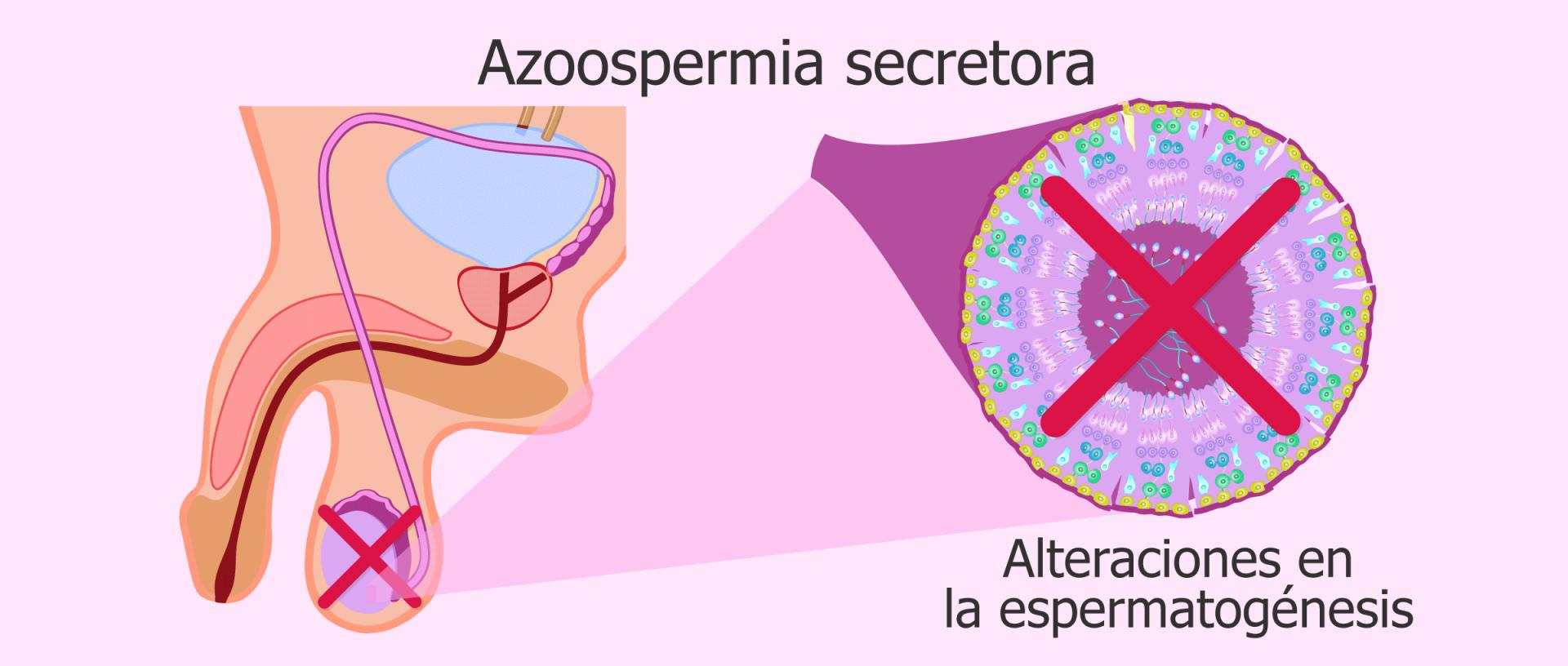 Azoospermia secretora