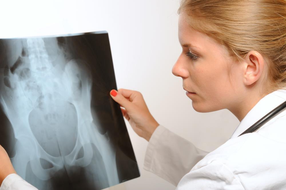 Cancer des os