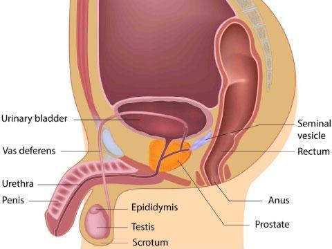 Chronic prostatitis1