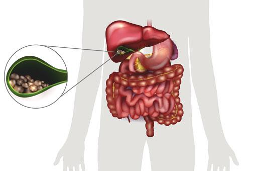 Dawasante alculs biliaires 1
