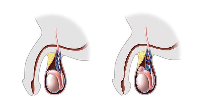 Epididymal cyst illustration canonical