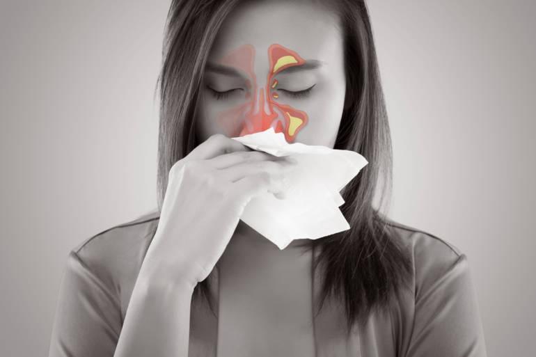 Fiche maladie sinusite gallerylarge