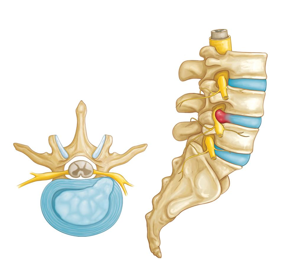 Herniated disk herniation
