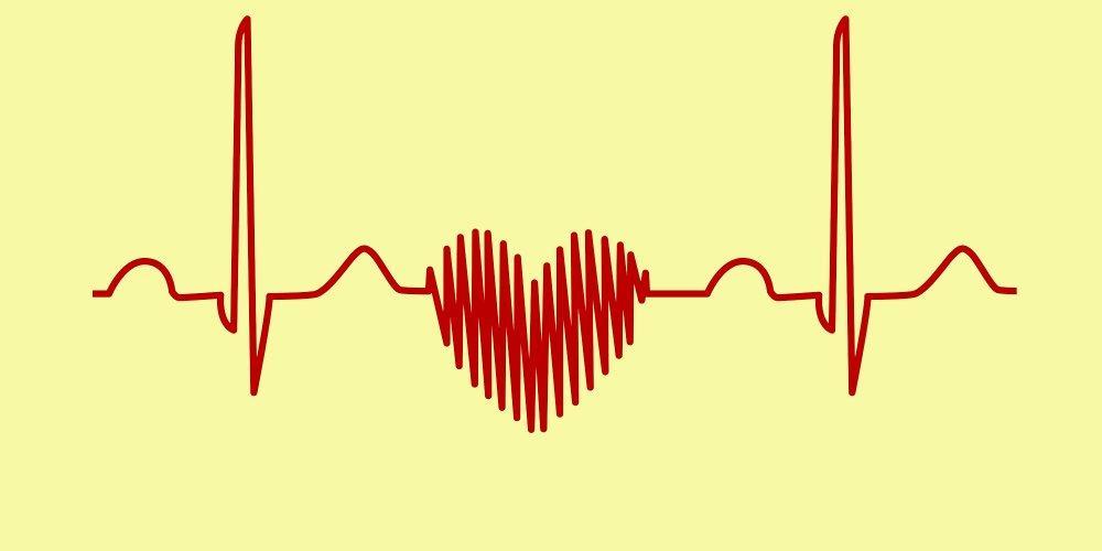 Hypertension coeur ecg 1