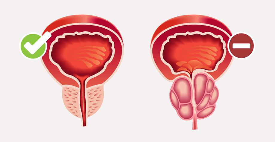 Izlechima li adenoma prostaty 5 8