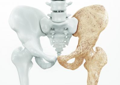 Osteoporause
