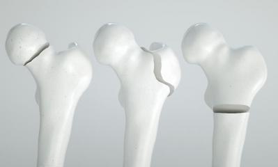 Osteoporose bone
