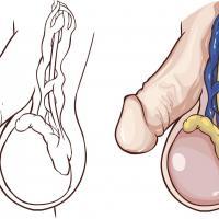 Por que salen varices en los testiculos 20953 orig 1