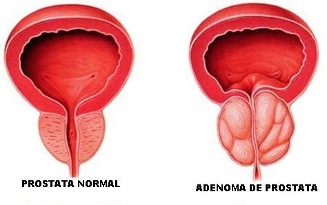 Prostata5