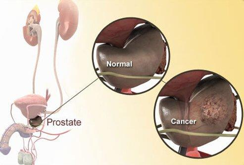 Prostate cancer s1 photo of prostate diagram