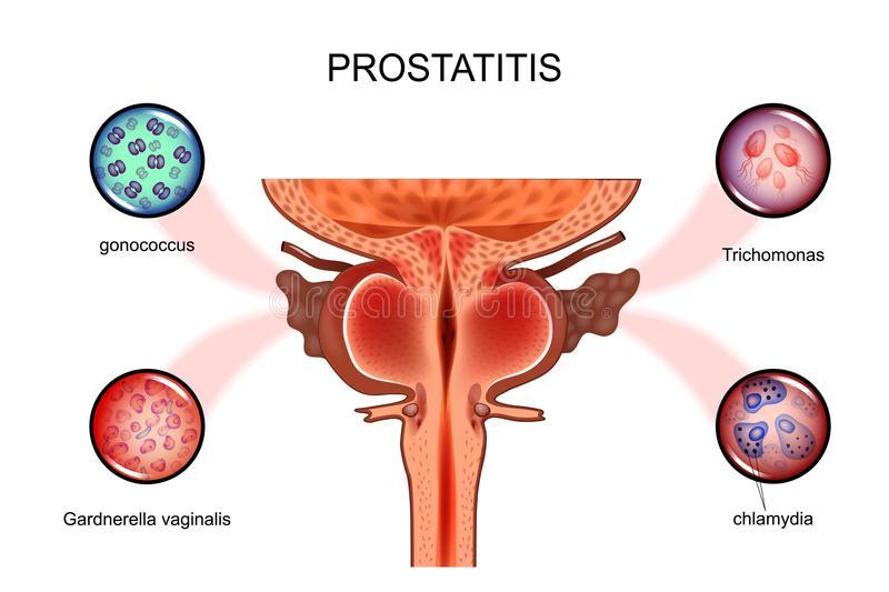 Prostatitis sexual infections vector illustration prostate 107732945