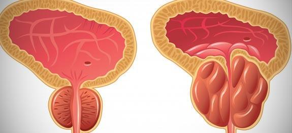 Remedes hypertrophie prostate