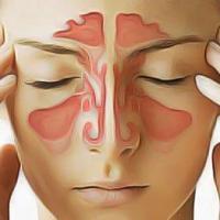 Remedes sinus enflammes