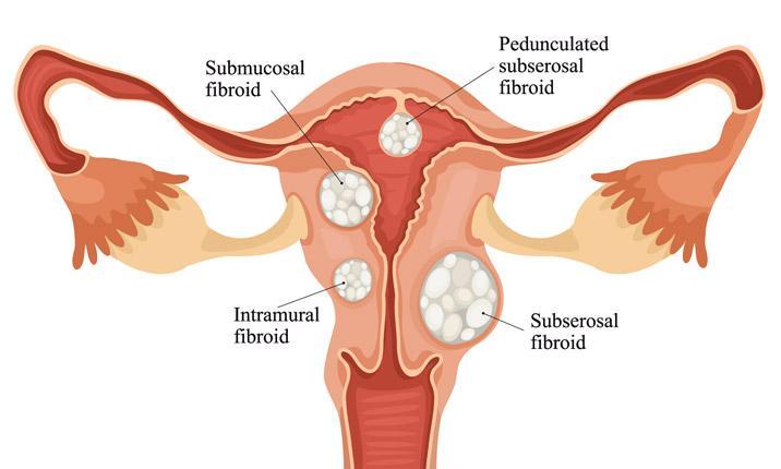 Uterine fibroids5e39ae7849bf63eeab9aff0f00dba087 1