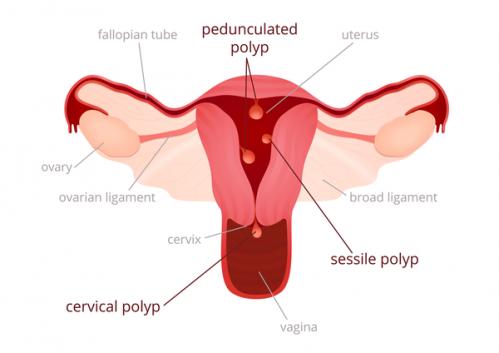 Uterine polyps